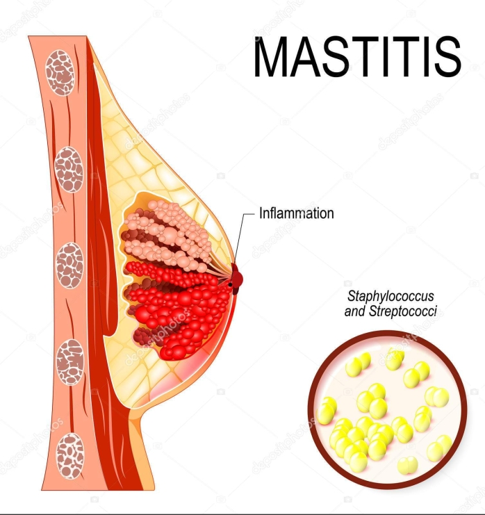 Mastitis. inflammation of the breast (abscess formation).